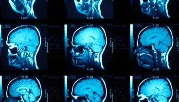 Ομάδα με επικεφαλής Ελληνίδα βρήκε το αποτύπωμα της συνείδησης στον εγκέφαλο
