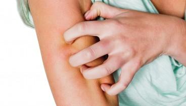Ροδόχρους νόσος και πώς αντιμετωπίζεται