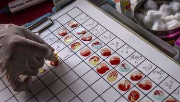 Πειραματικό τεστ αίματος ανιχνεύει το DNA από οκτώ διαφορετικά είδη καρκίνου